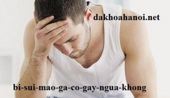 bi-sui-mao-ga-co-gay-ngua-khong